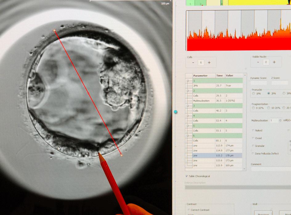 Un embrione di cinque giorni. Epa/Waltraud Grubitzsch
