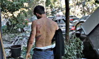 epa08585521 A Lebanese person shows injuries on the back after the massive explosion in Beirut, Lebanon, 05 August 2020. According to Beirut's Governor Marwan Abboud, at least 100 people were killed and more than 4,000 were injured after an explosion, caused by over 2,500 tons of ammonium nitrate stored in a warehouse, devastated the port area on 04 August.  EPA/NABIL MOUNZER